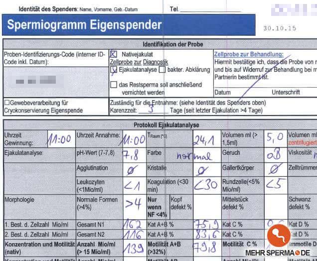 Spermiogramm nach Volume 500 Einnahme